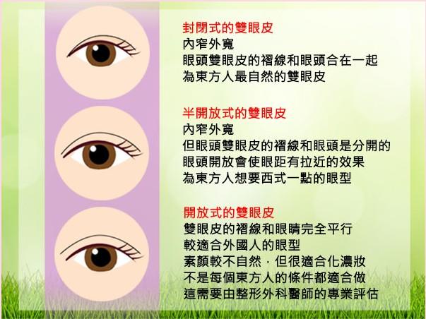台北雙眼皮手術