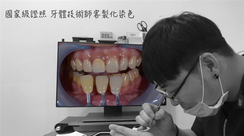高雄一日假牙